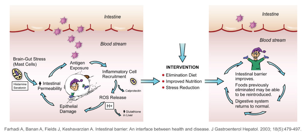 """Graphic of the intestinal barrier where on the left side of the graphic there shows cycle of Brain-Gut Stress leading to Intestinal Permeability leading to Antigen exposure leading to Inflammatory cell recruitment leading to ROS Release leading to epithelial damage and back to intestinal permeability. This cycle shows a break in the intestinal barrier allowing blod flow through the barrier. In the middle of the graphic is the header """"Intervention"""" with three bullets points of elimination diet, improved nutrition and stress reduction under it. On the right side of the graphic shows shows again a circle of movement but showing that with Intervention and the three bullet points intestinal barrier improves. Foods previously eliminated may be able to be reintroduced. Digestive system returns to normal. The graphic also shows a barrier between the Intestin and the blood stream with only one section broken. Graphic is found in Farhadi A, Banan A, Fields J, Keshavarzian A. Intestinal barrier: An intercae between health and disease. In Journal of Gastroenterology and Hepatology. 2003. Volume 18, Issue 5, pages 479-497."""